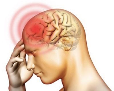 Phát hiện cơn đau đầu này bạn cần tới bệnh viện ngay