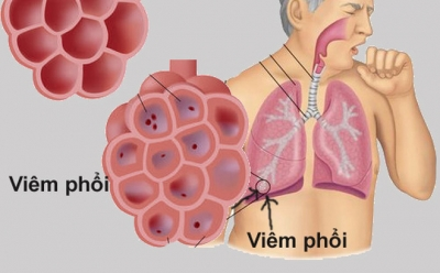 Đừng bỏ qua 8 dấu hiệu bệnh viêm phổi trong mùa lạnh
